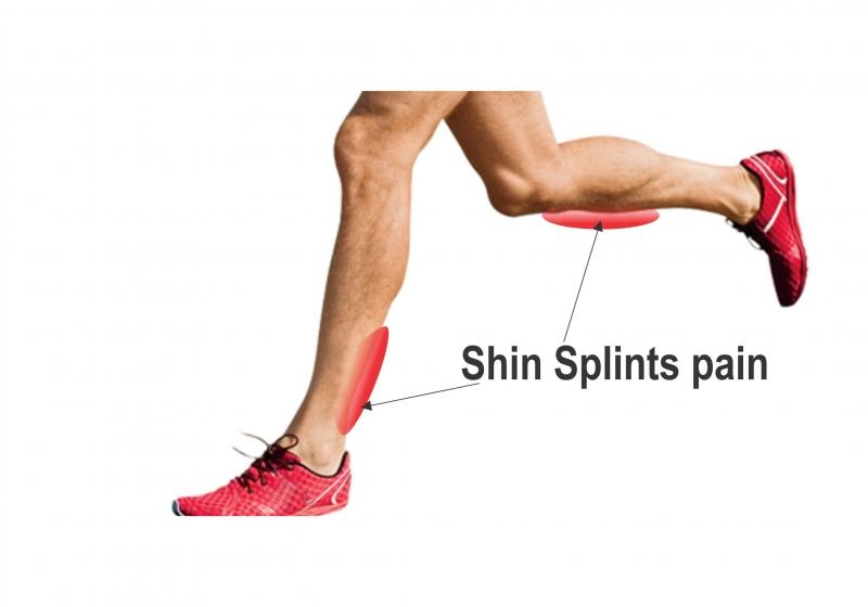 Shin Splint Pain Treatment In Gurgaon Dr Rajesh Pal Experienced Physiotherapist In Gurgaon