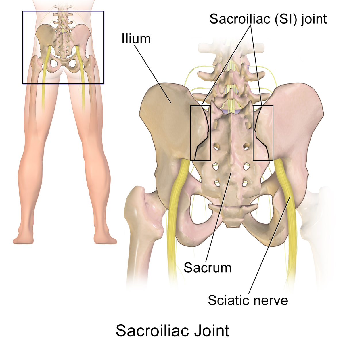 (SIJ) Joint Dysfunction
