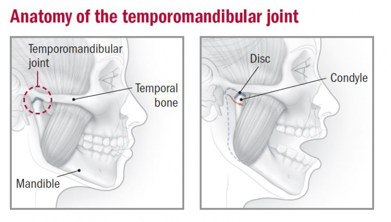 (TMD) Joint Dysfunction