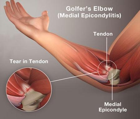 Tennis & Golfers Elbow